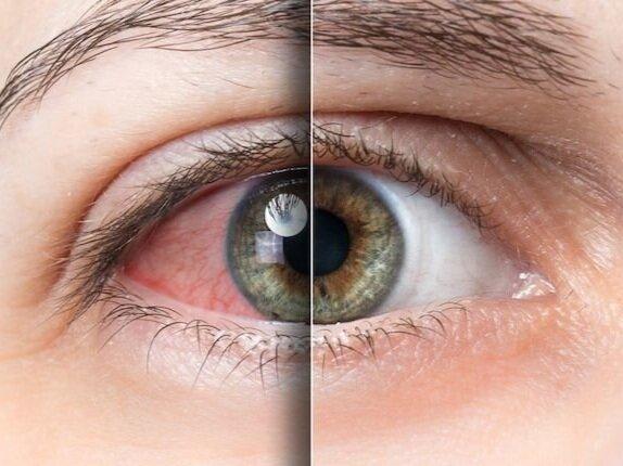 dry+eye